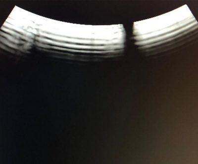 Art_2_fot_3 uszkodzony krysztal piezo martwe krysztaly glowica2 usg